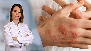 Koronadan korunayım derken sağlığınızdan olmayın; cilt ve solunum hastalılarına uzman uyarısı