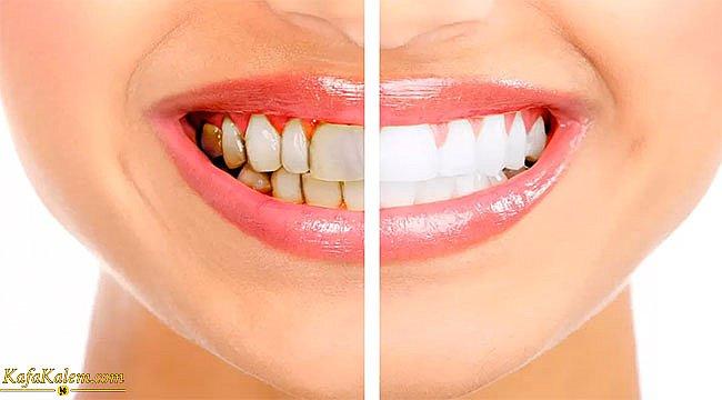 Diş tartarı nedir? Diş tartarlarına uygulanabilecek doğal yöntemler nelerdir?