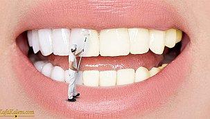 Evde diş beyazlatma yöntemleri; mutlaka deneyin