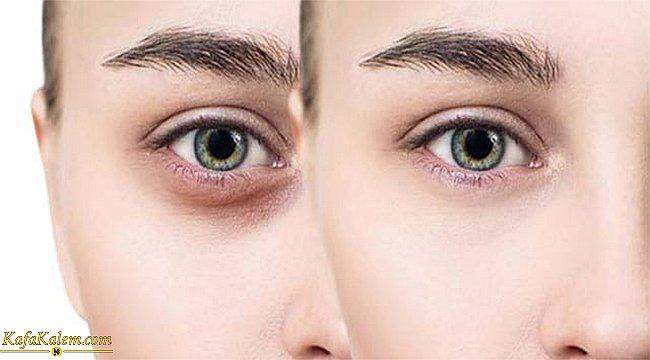 Göz altı morluğu nedir? Göz altı morluğu neden oluşur ve geçirmenin yolları nelerdir?