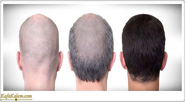 Saç ekimi hakkında detaylar; nedir, nasıl uygulanır, kimlere uygulanır ve uygulama sonrası dikkat edilmesi gerekenler nelerdir?